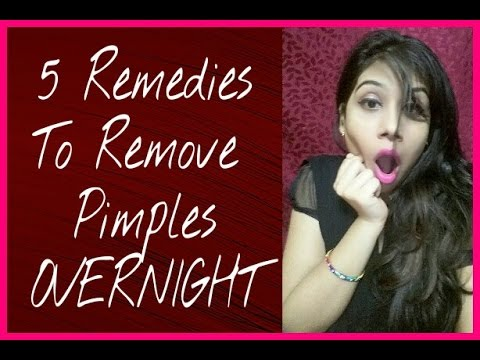 How To Remove Pimple And Pimple Marks At Home | Overnight | 5 Home Remedies (100% Works) With Result
