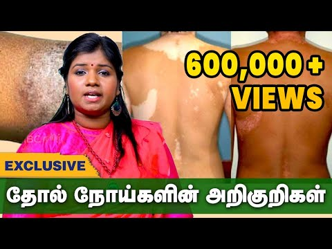 Xxx Mp4 எல்லா தோல் நோய்களுக்கும் இதுதான் தீர்வு Skin Diseases Treatment In Siddha Thol Noi Pirachanai 3gp Sex