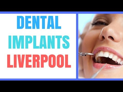 dental implants liverpool - Best dental implants in liverpool