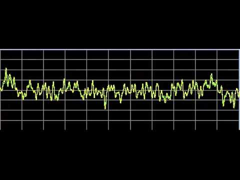 Vision Disorders - Rife Frequencies