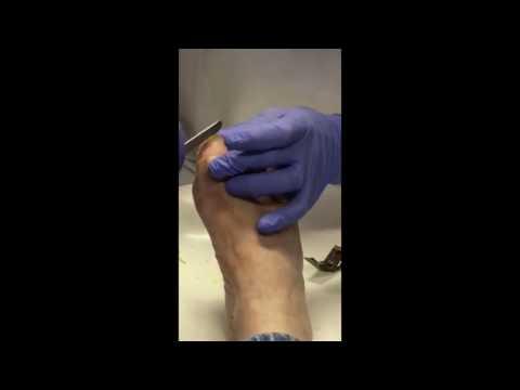How to treat thickened toenails