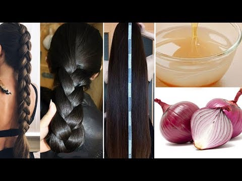 Hair Growth Naturally | Ways To Use Onion For Hair Growth | World's Best Remedy for Hair Growth