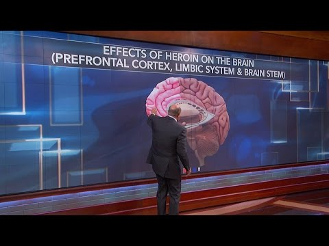 How Using Heroin Changes Your Brain