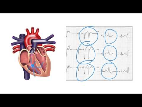 Determining the origin of ventricular ectopic beats on the ECG - Ask Andrew