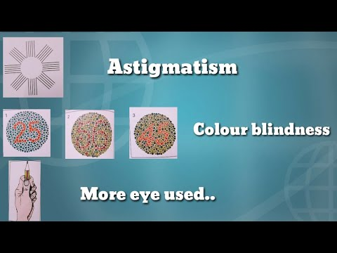 Check if you are suffering from eye problems or not