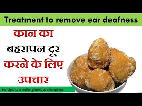 कान का बहरापन दूर करने के लिए उपचार Treatment to remove ear deafness