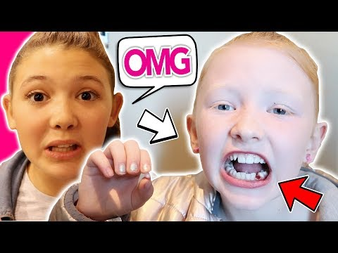 WHEN YOUR CHILD RIPS OUT HER OWN TOOTH!