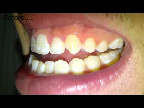 Day 3 - Before and After Tooth Extraction