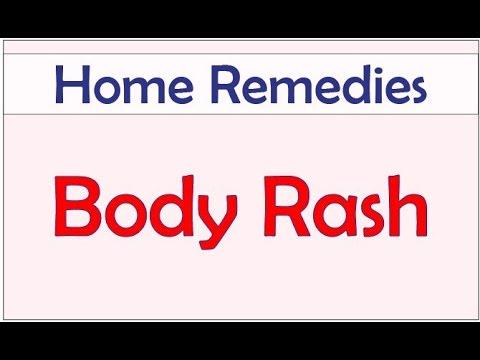 Home Remedies for Body Rash   Body Rash   Best Home Remedies for Body Rash on   babies