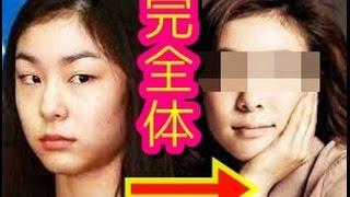 【ビフォーアフター】整形後のキムヨナの顔面が全くの別人に驚愕の変貌ぶりをご確認ください