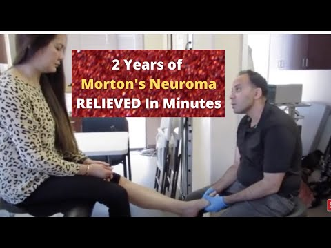 2 Years of Morton's Neuroma Pain Relieved Before Your Eyes