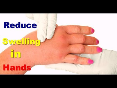 Reduce Swelling in Hands How to Reduce Swelling Naturally How to Treat Swollen Fingers With Exercise