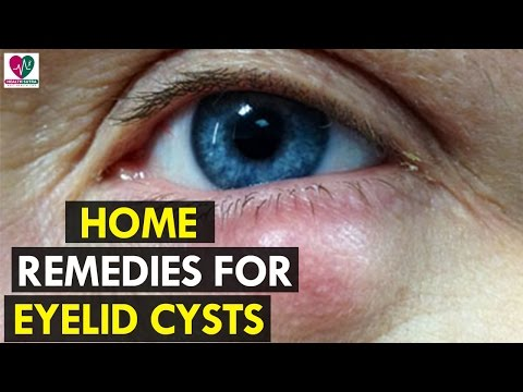 Home Remedies for Eyelid Cysts - Health Sutra