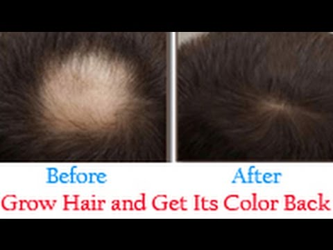 1.05 Hz Delta Binaural (1.5 Hrs) for Hair Growth and Getting its Natural Color Back