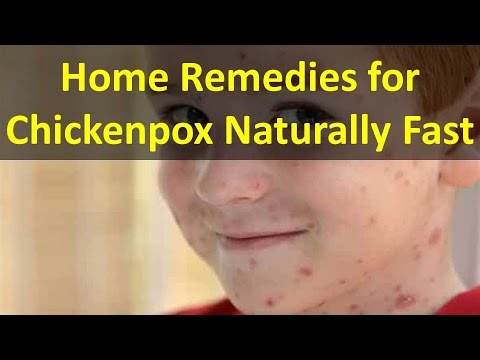 How to Get Rid of Chicken pox Fast!