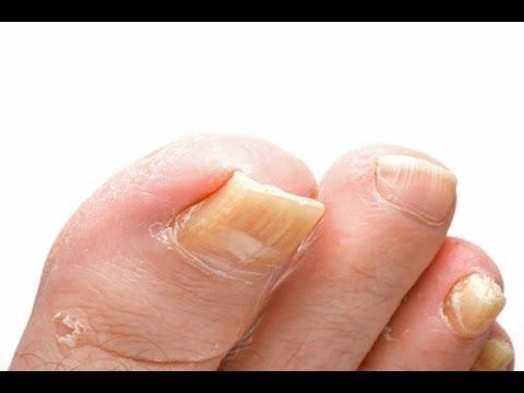 Toenail Fungus Treatment - How to Treat Toenail Fungus FAST With Home Treatments