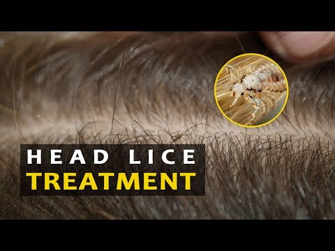 How to get rid of lice fast and Naturally | Head lice treatment