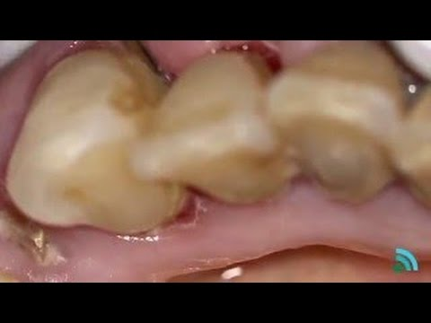 Tartar removal teeth | Removing plaque from teeth by doctor
