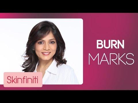 How To Treat Burn Marks || Skincare || Skinfiniti With Dr.Jaishree Sharad