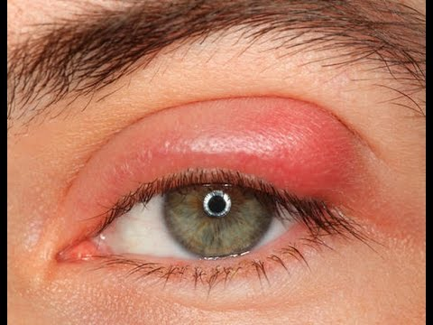 Swollen Eyes Remedy - Natural Home Remedies To Cure Swollen Eyes