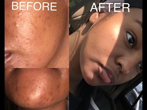 HOW TO CLEAR ACNE AND ACNE SCARS FAST! BEFORE AND AFTER RESULTS!