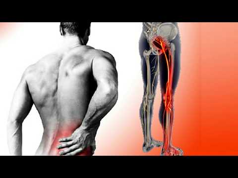 How to Treat Sciatica at Home