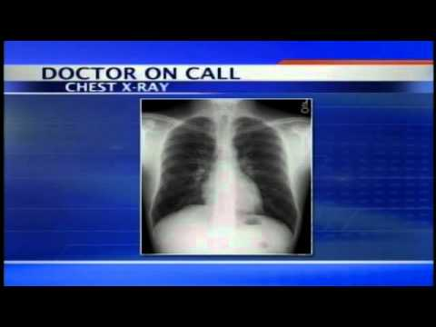 Doctor on Call 3/7/11- Chest Pains & Appendix Purpose