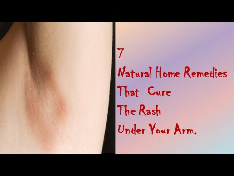7 Natural Home Remedies That  Cure The Rash Under Your Arm