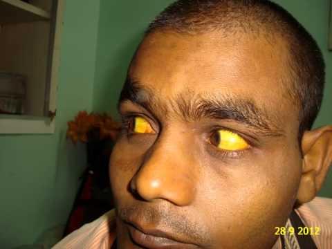 Jaundice Cured by Homeopathy Serum Bilirubin 44.7 Dr.Ravi Singh
