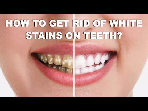 How To Get Rid of White Stains on Teeth with Home Remedies - Get Rid of White Spots on Teeth Fast