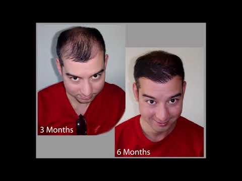 Hair transplant cost Manchester, UK (free consultation) - Hair Clinic Budapest, Hungary