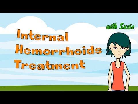 Internal Hemorrhoids Treatment - How to Treat Internal Hemorrhoids