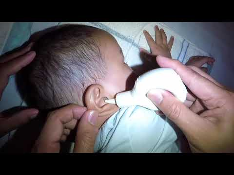 Baby Boy's Ear discharge (Phlegm) Removal