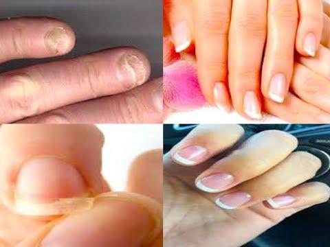 नाखूनों को तेजी से लम्बे, मजबूत, चमकदार, सुंदर बनायें / Long Healthy Nails / Strong Nail Growth Tip