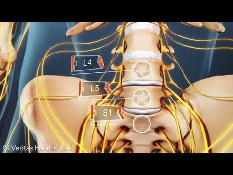 how to relieve l4 l5 back pain
