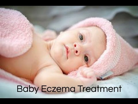 How to Treat Baby Eczema : Baby Eczema Home Treatment