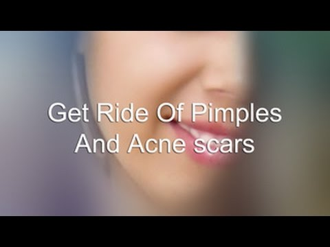 Get Rid Of Pimples And Acne Marks (Mental technique)