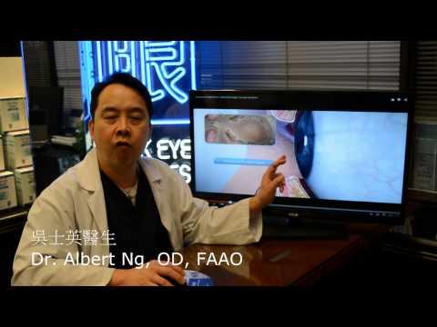 眼瞼油管病 Meibomian Gland Dysfunction Etiology