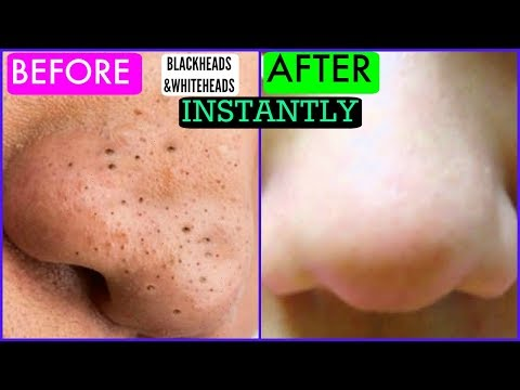 How To Remove Blackheads and whiteheads Instantly | SuperPrincessjo