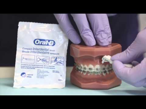 Cleaning your braces with a proxa brush