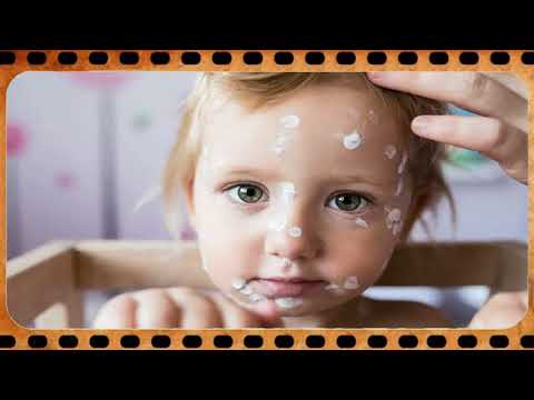 How To Get Rid Of Chickenpox Quickly ✈ Chicken Pox In Male Adults