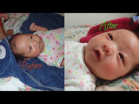 Baby Eczema Treatment | Naturally