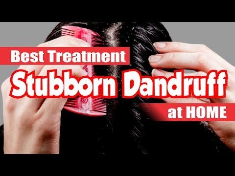 Natural Treatment for Stubborn Dandruff Quickly