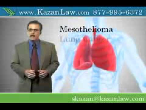 Asbestos Exposure Causes Lung Cancer and Mesothelioma  Video