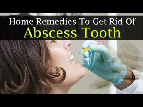 6 DIY Home Remedies To Get Rid Of An Abscess Tooth