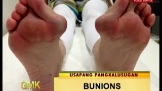 Untv What Causes Bunions And How Do You Get Rid Of It