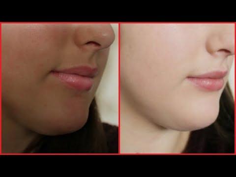 How To Remove Hyperpigmentation, Darkness, Dark Patches, Dark Spots & Darkness Around Mouth