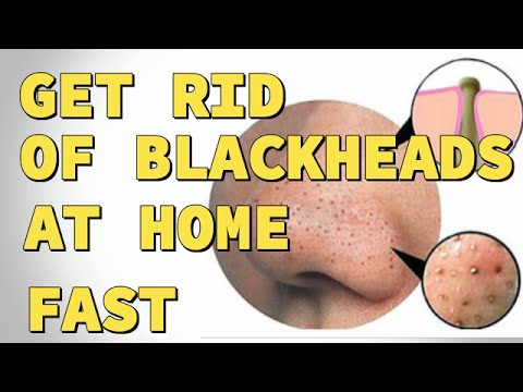 2 Ways To Get Rid Of Blackheads On Nose At Home Fast