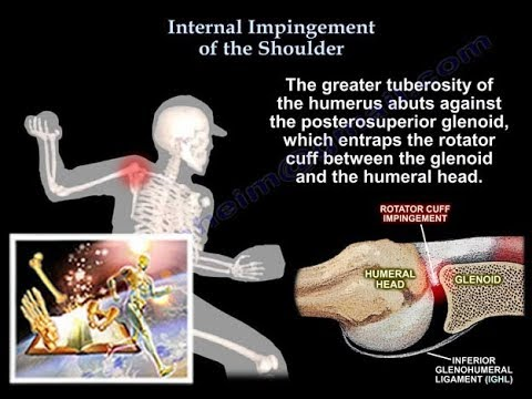 Internal Impingement  of the shoulder- Everything You Need To Know - Dr. Nabil Ebraheim