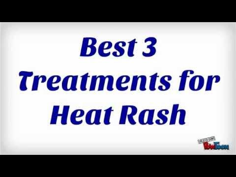 Heat Rash Symptoms? Top 3 Treatments